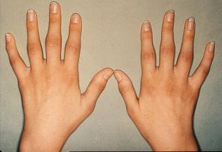 artrite mani)