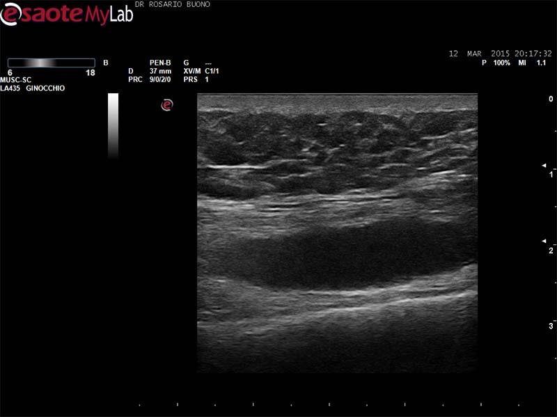 AP ginocchio Dottor Rosario Buono