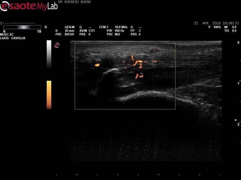 Entesite-achillea-in-AP-attiva-3 Dottor Rosario Buono
