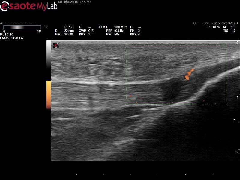 Entesite-rotulea-in-AP Dottor Rosario Buono