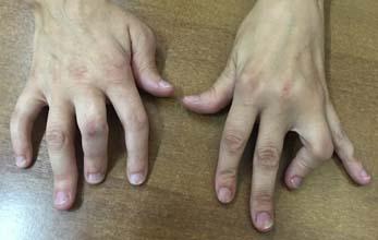 artrite-psorisiaca