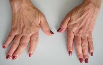 artrite-reumatoide