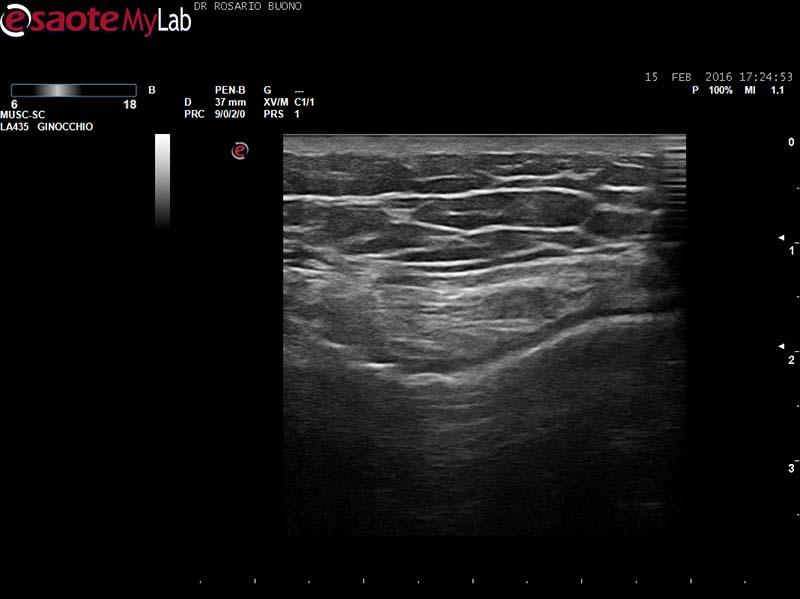 ginocchio artrosico con consumo cartilagineo Dottor Rosario Buono
