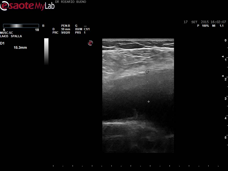 iperplasia sinoviale in paziente con AR Dottor Rosario Buono